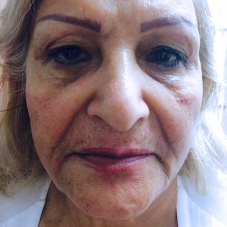 Laser Skin Rejuvenation Slmc Skin Clinic Ottawa Laser Center